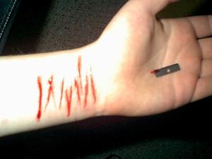 cut-by-razor-kissed-wrists
