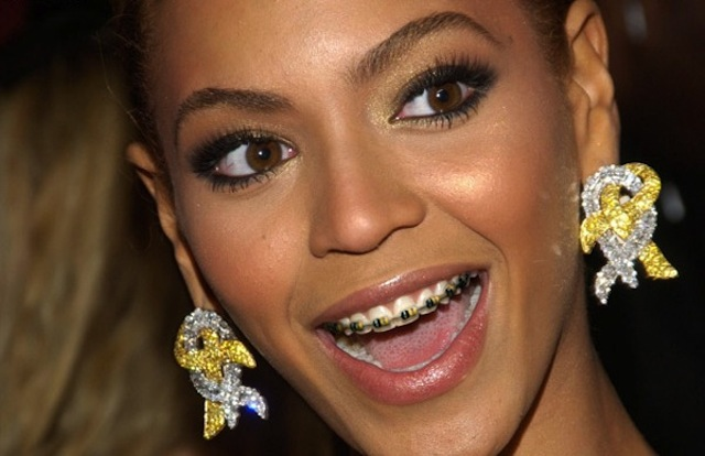 Celebrities who wore braces at one time queen b wore braces not in teenage but a few years back she was making a bold statement of being yourself solutioingenieria Choice Image
